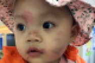 Huyện An Dương nói bé gái bị nhiều vết thương trên mặt là do... bạn cắn