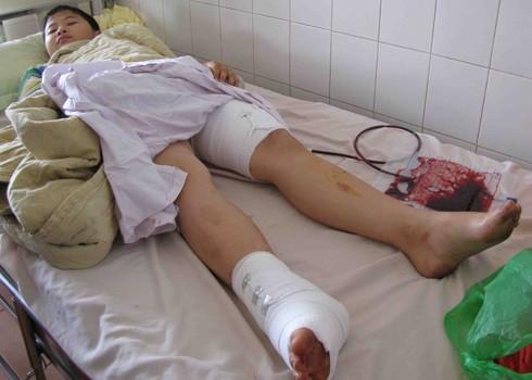 Em Hiếu bị thương, đang điều trị tại bệnh viện. Ảnh: Thanh Luận.
