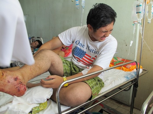 Dung phai trau 40 du khach Viet gap nan o Campuchia