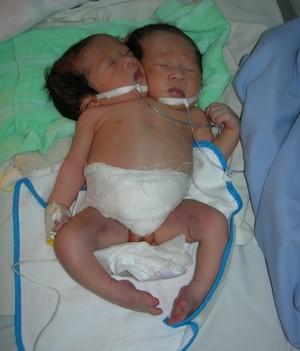 Bé gái sơ sinh có hai đầu, hai cổ ở Sóc Trăng