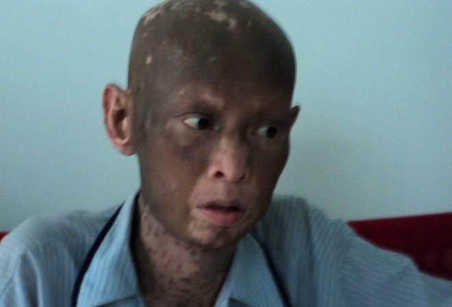 Bệnh lạ khiến người đàn ông sụt 40kg, lột da như rắn