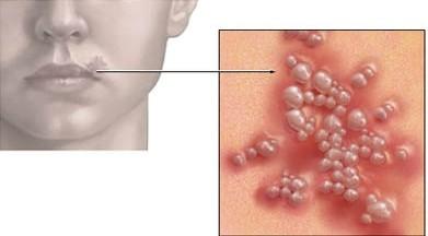 16 dấu hiệu có thể bạn bị nhiễm HIV