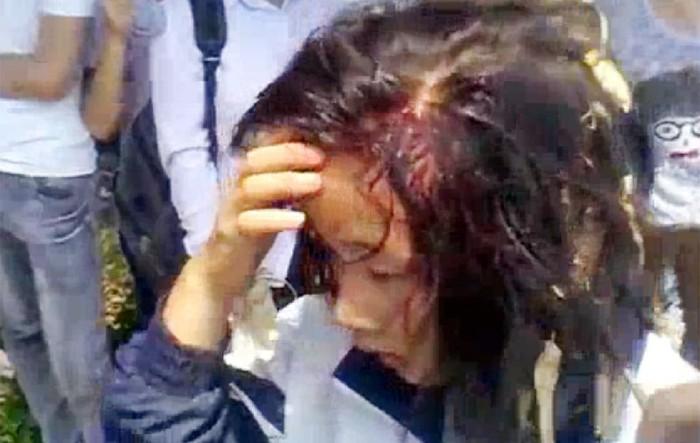 Shock nặng với clip nữ sinh đánh nhau vỡ đầu