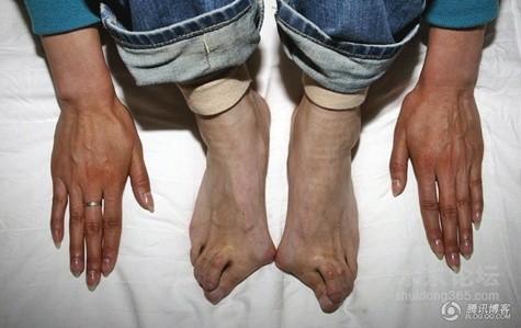 Đôi bàn chân tật nguyền biến dạng - quả đắng từ những tháng ngày khổ luyện