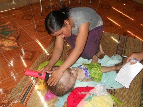 Bệnh lạ, bé 2 tuổi đầu to hơn nồi cơm điện, Tin tức trong ngày, Benh la, dau to, ma rung, dau co chat long, benh vien, bac si, Quang Nam, nganh y te, suc khoe, bao.
